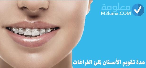 مدة تقويم الأسنان لملئ الفراغات